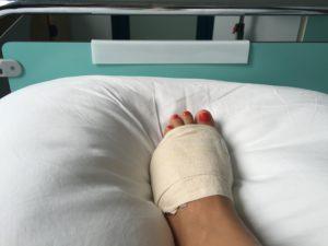 post operazione il piede viene fasciato